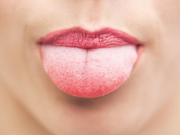 Por qué siento la lengua escaldada y cómo curarla