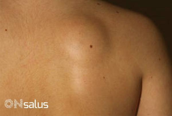 Lipoma en la espalda: qué es, causas y tratamiento