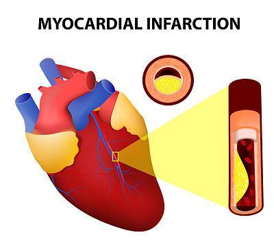 Dolor en el brazo izquierdo y hombro: causas y tratamiento - Dolor en brazo izquierdo y hombro por causas de origen cardiovascular