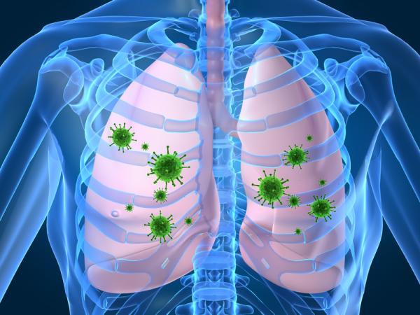 Dolor de espalda a la altura de los pulmones: causas y tratamiento - Neumonía