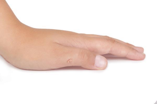 Nitrato de plata para verrugas: cómo usarlo y aplicarlo - Aplicación del nitrato de plata en las verrugas