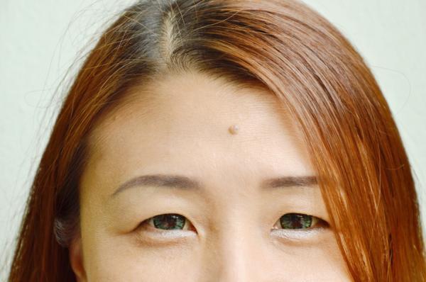 Verrugas en la cara: por qué salen y cómo quitarlas