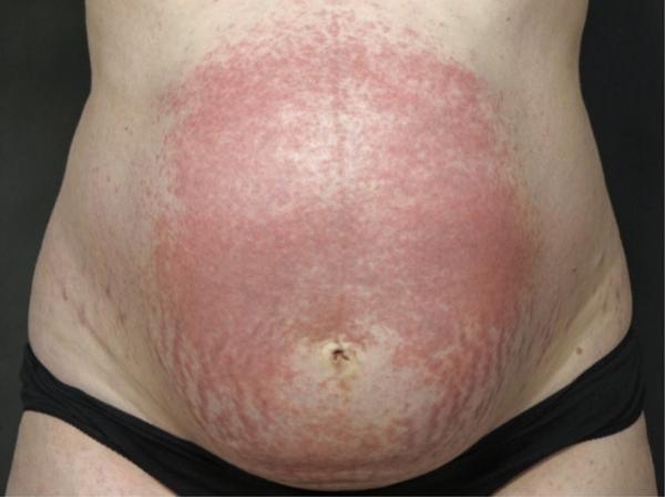 Picazón en la piel en el embarazo: causas - Erupción polimorfa del embarazo