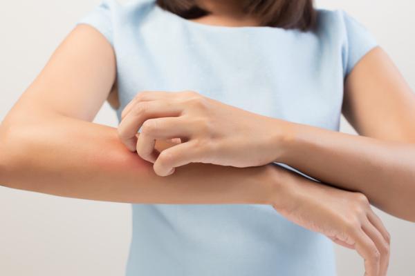 ¿La urticaria es contagiosa? - Urticaria: causas