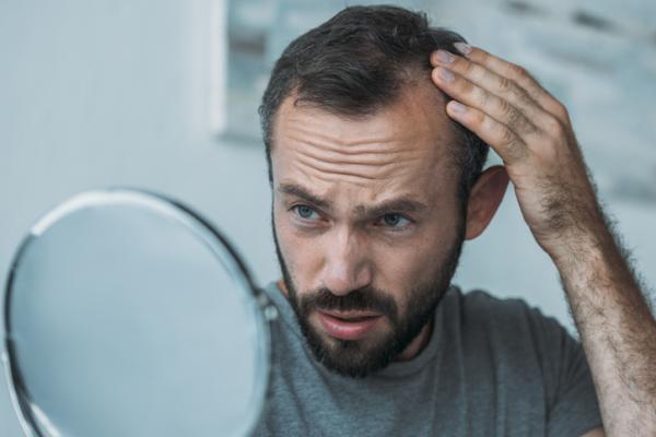 ¿El Minoxidil causa impotencia?