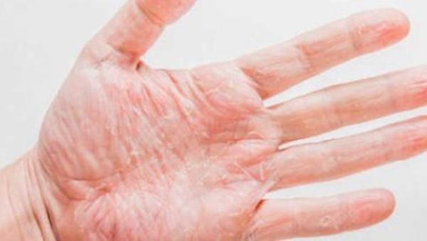 Por qué se pelan las manos
