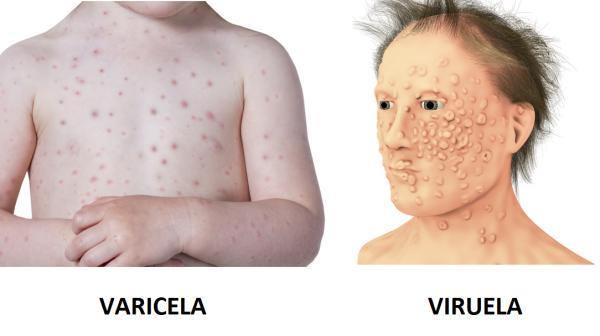 Diferencia entre varicela y viruela - Varicela y viruela: síntomas