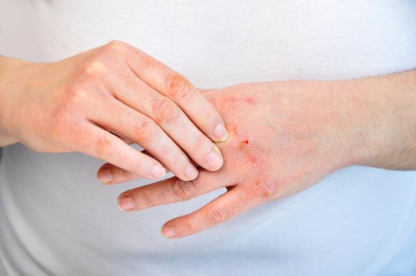 Eczema en las manos: causas, tratamiento y remedios