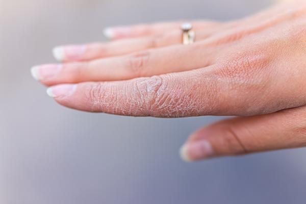 Grietas en las manos: por qué salen y cómo curarlas