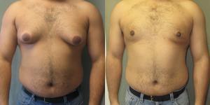 Ginecomastia en hombres: qué es, causas, tratamiento y operación