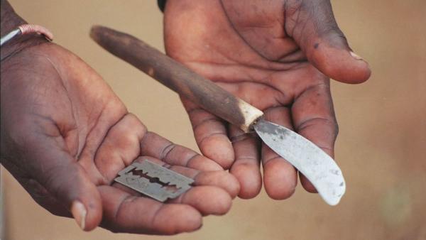 En qué consiste la circuncisión femenina - Diferentes procedimientos para la circuncisión en las mujeres