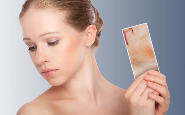Irritación en la cara: causas, tratamiento y remedios caseros - Causas de la irritación en la cara