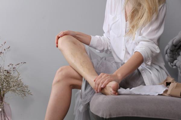 Qué es el síndrome de piernas cansadas y cómo tratarlo