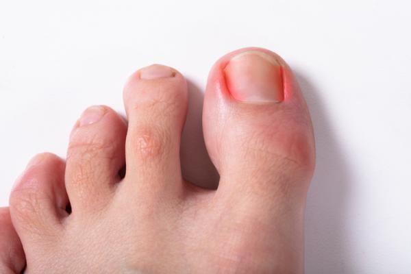 Cómo curar un uñero en el dedo gordo del pie