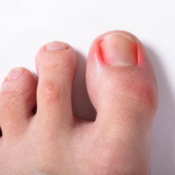 como quitar el heartache de dedo notable del pie