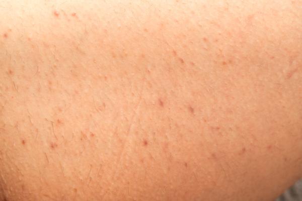 Foliculitis en las piernas: causas, tratamiento y remedios caseros