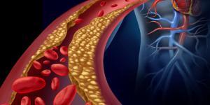 Remedios caseros para limpiar las arterias