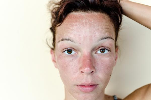 Cómo quitar quemaduras de sol en la cara