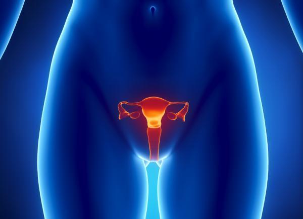 Cómo adelgazar si tengo ovarios poliquísticos