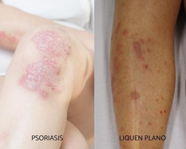 Tipos de erupciones en la piel - Enfermedades inflamatorias que causan erupciones en la piel