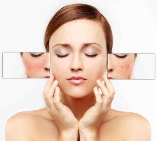 Aceite de jojoba para cicatrices de acné: propiedades y cómo aplicarlo - Es totalmente seguro el uso de aceite de jojoba para cicatrices de acné