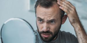 Alopecia androgénica: qué es, causas y tratamiento
