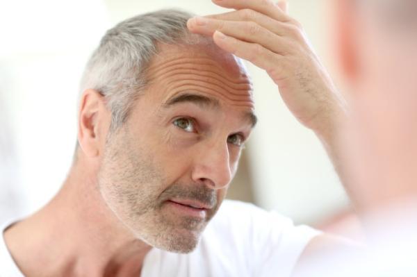 Alopecia androgénica: qué es, causas y tratamiento - Qué es la alopecia androgénica