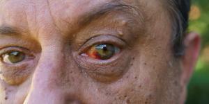 Verrugas en los párpados: causas, cómo quitarlas y remedios caseros