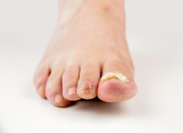 Cómo curar una uña negra del pie - Causas de las uñas negras de los pies