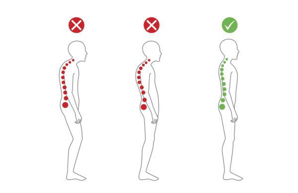Dolor de espalda alta y cuello: causas, tratamiento y ejercicios - Mala postura