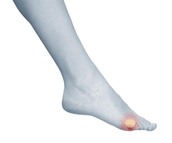 Por qué salen ampollas en los pies y cómo curarlas - Cómo curar las ampollas en los pies