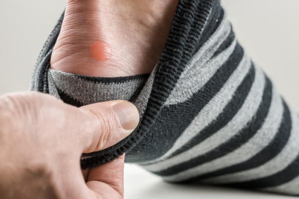 Por qué salen ampollas en los pies y cómo curarlas