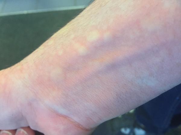 Manchas rojas en la piel que aparecen y desaparecen: causas y tratamiento