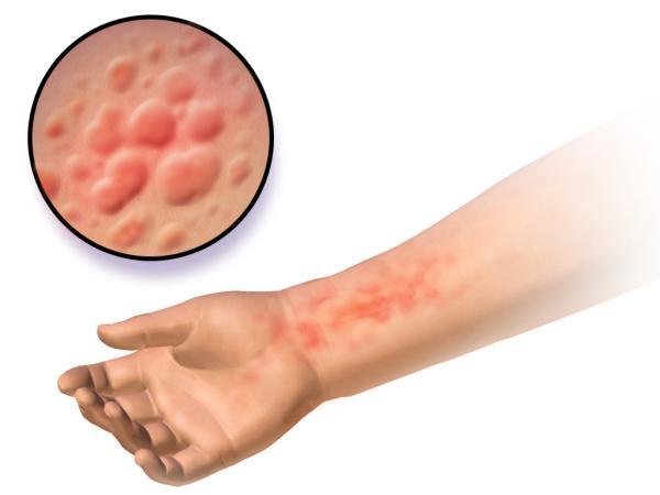 Manchas rojas en la piel que aparecen y desaparecen: causas y tratamiento - Otras causas de las manchas rojas en la piel que aparecen y desaparecen