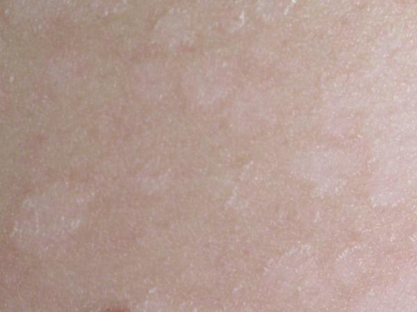 ¿A qué se debe la falta de melanina? - ¿A qué se debe la falta de melanina? - Causas