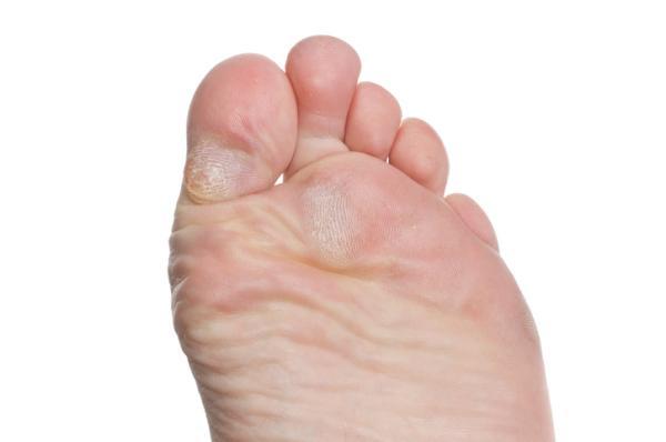 Remedios caseros para quitar un ojo de gallo en el pie - Qué es un ojo de gallo en el pie y cuáles son sus causas
