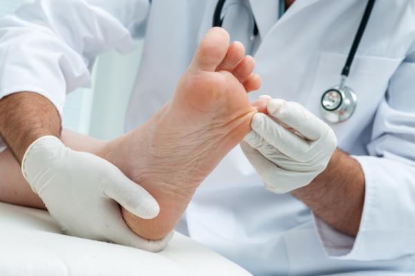 Remedios caseros para quitar un ojo de gallo en el pie - Tratamiento médico para quitar un ojo de gallo en el pie