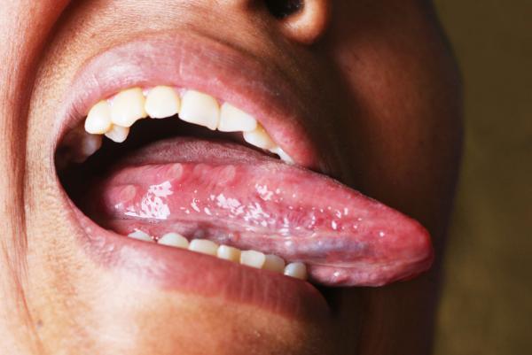 Dolor en la lengua al tragar - Dolor al tragar por infección en la lengua