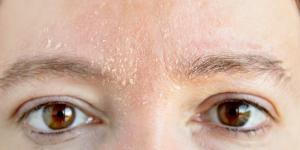 Resequedad en la cara: causas, tratamiento y remedios caseros