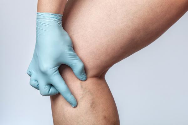 Cómo desinflamar una vena hinchada - ¿Por qué se hinchan las venas?