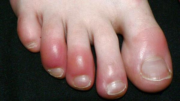 Remedios caseros para los sabañones en los pies