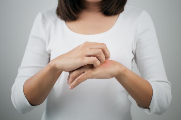 Dermatitis en las manos: causas, tratamiento y remedios caseros