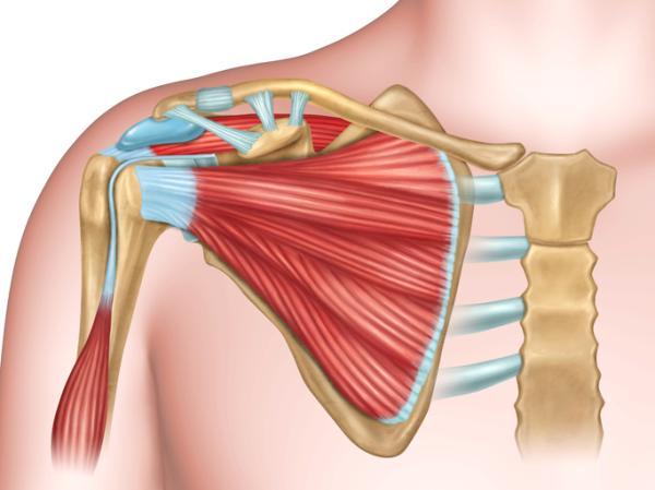 Lesión del manguito rotador: causas, síntomas y tratamiento
