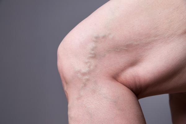 Flebitis: qué es, tipos y tratamiento - Tipos de flebitis