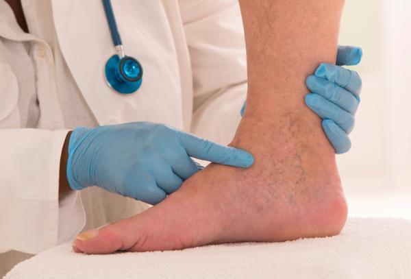 Flebitis: qué es, tipos y tratamiento - Tratamiento para la flebitis