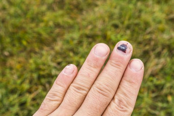 Por qué se ponen las uñas moradas