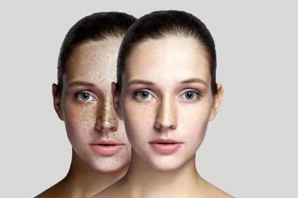 Cómo quitar las pecas de la cara