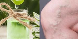 Aloe vera para las varices: beneficios y cómo usarlo