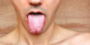 Por qué tengo la saliva blanca y espumosa