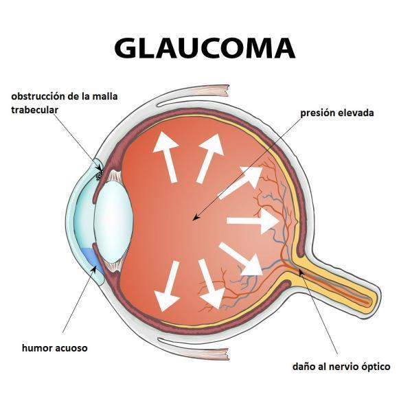 Mancha roja en el ojo: causas y tratamiento - Causas de ojo rojo más severas